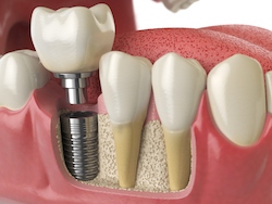 dental implants tooth replacement